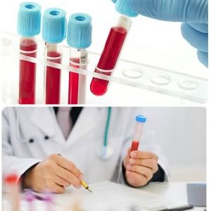 Анализ на тромбоциты