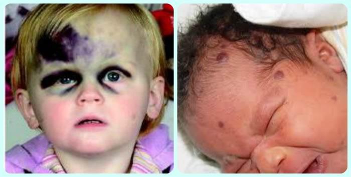 тромбоциты у новорожденных