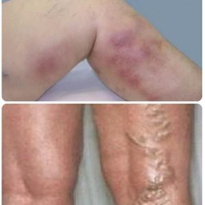 Тромб в ноге симптомы фото