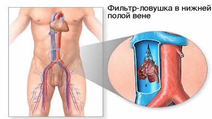 Ловушки для тромбов