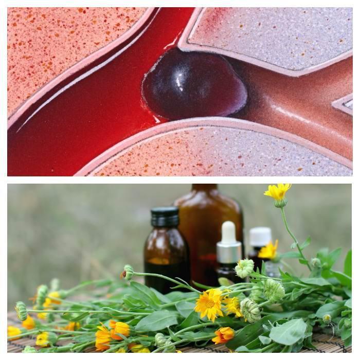 Народные средства лечения тромбов головы