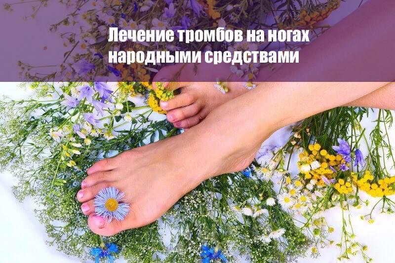 Лечение тромбов на ногах народными средствами