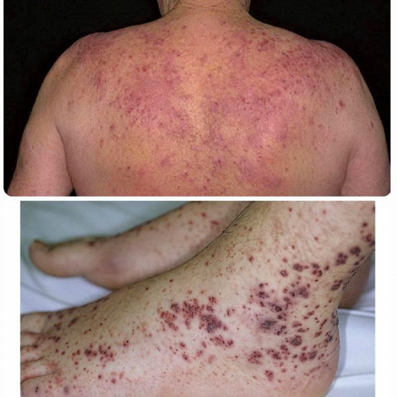 Тромбоцитопеническая пурпура у взрослых