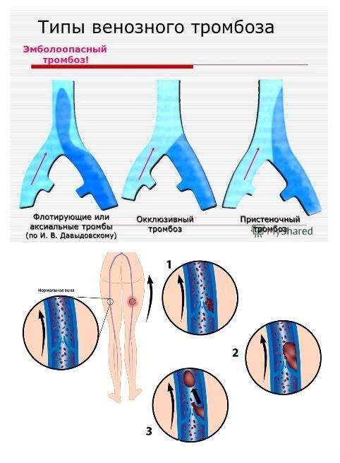 Виды тромбоза