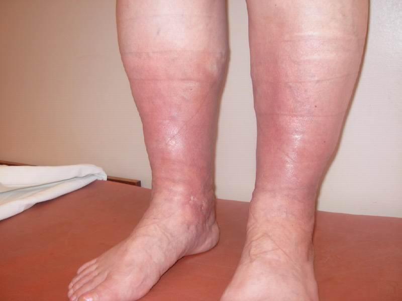 Тромбофлебит нижних конечностей симптомы