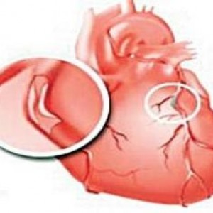 Тромб в левом желудочке сердца