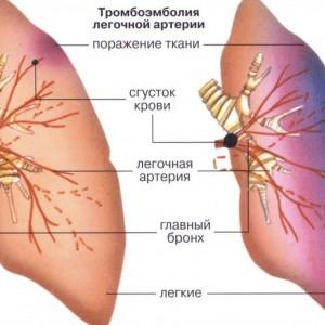 Тромбоэмболия симптомы