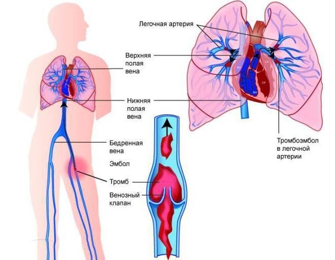 Неотложная помощь при тромбоэмболии